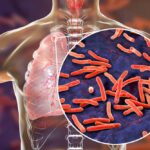 Dünyada En Çok Öldüren Bulaşıcı Hastalık: Verem